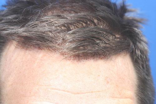 synergi-hair-restoration-pic1