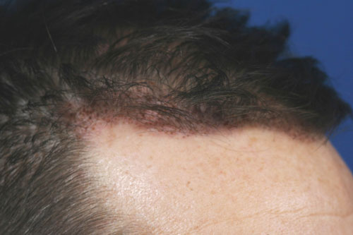 synergi-hair-restoration-pic2