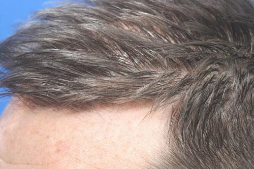 synergi-hair-restoration-pic3