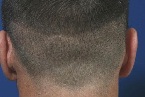 synergi-hair-restoration-pic4